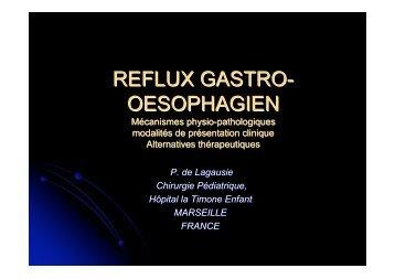 Reflux gastro-oesophagien - SOFOP