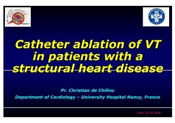 Catheter ablation of VT in patients with a structural heart disease