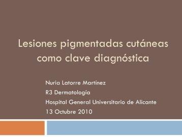 Lesiones pigmentadas cutáneas como clave diagnóstica