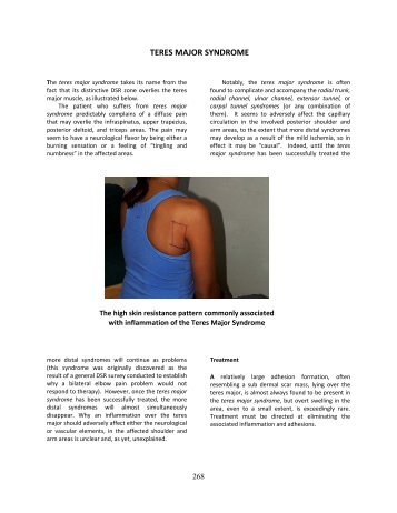 TERES MAJOR SYNDROME - Advtherapy.net
