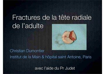 Fractures de la tête radiale de l'adulte - ClubOrtho.fr