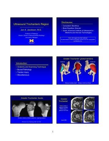 jacobson glut tendon 8-23-12 syllabus