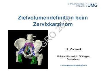 Zielvolumendefinition beim Zervixkarzinom