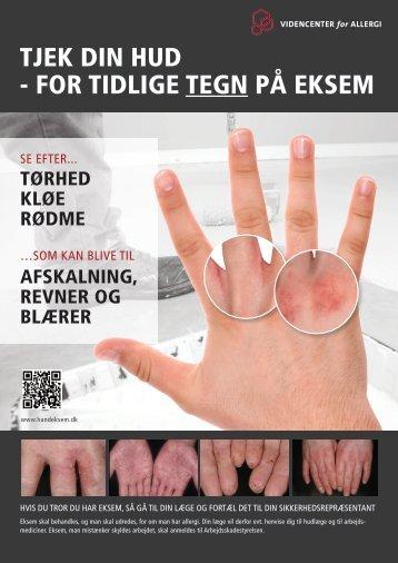 Opslag til arbejdspladsen om epoxyallergi og håndeksem