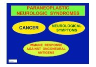 paraneoplastic neurologic syndromes cancer - (GFID) eV