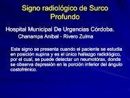 signo radiologico del surco profundo - Congreso SORDIC