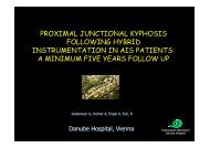 proximal junctional kyphosis following hybrid instrumentation in ais ...