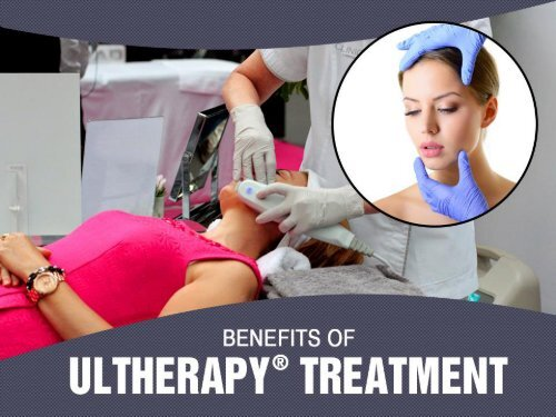 Top Benefits of Ultherapy® Treatment in Kansas City
