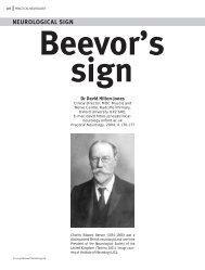 Beevor's sign NEUROLOGICAL SIGN - Practical Neurology
