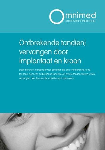 Ontbrekende tand(en) vervangen door implantaat en kroon - Omnimed