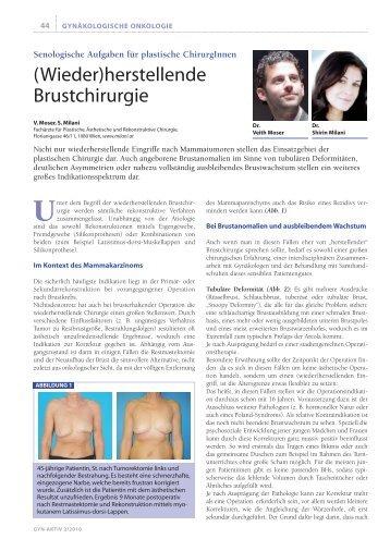 (Wieder)herstellende Brustchirurgie -  Moser Milani