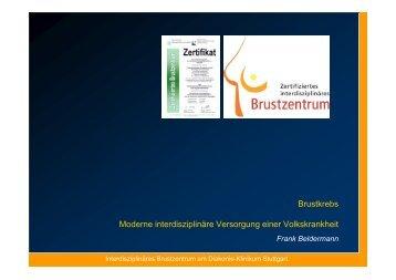 Interdisziplinäre Versorgung der Patientin mit Brustkrebs