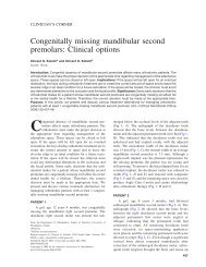 Congenitally missing mandibular second premolars ... - DentalXP