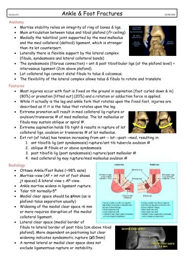 Ankle & Foot Fractures