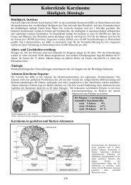 Kolorektale Karzinome - Klinik für Hämatologie und Onkologie ...