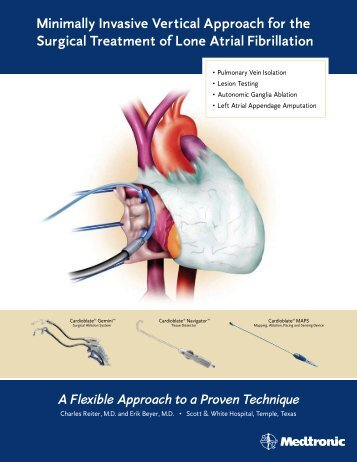 Minimally Invasive Vertical Approach for the Surgical ... - Medtronic