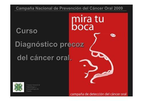 Curso Diagnóstico precoz del cáncer oral.