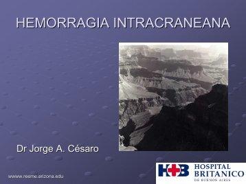 Hemorragia Intracraneana - Reeme.arizona.edu