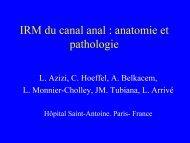 IRM du canal anal : anatomie et pathologie