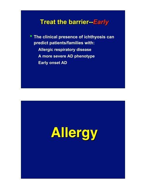 Atopic Dermatitis: Therapeutic Challenges