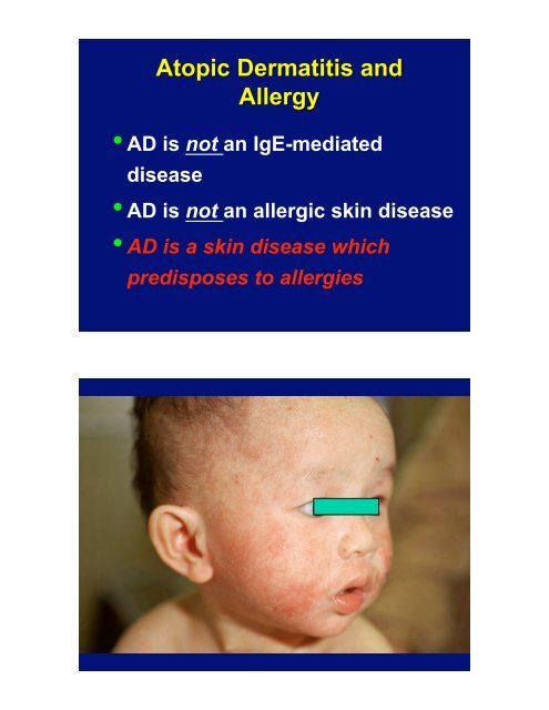 Atopic Dermatitis: Therapeutic Challenges