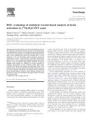 ROC evaluation of statistical wavelet-based analysis of brain ...