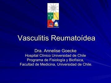 Vasculitis Reumatoídea