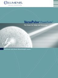VPulse Brochure.qxd - Laservision
