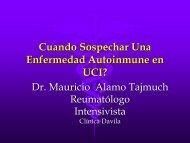 Cuando Sospechar Una Enfermedad Autoinmune en UCI?