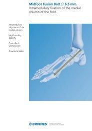 Midfoot Fusion Bolt 0 6.5 mm. Intramedullary fixation ... - Osteosyntese