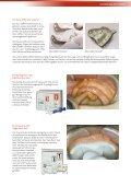 Accu-Dent® - Candulor - Seite 3