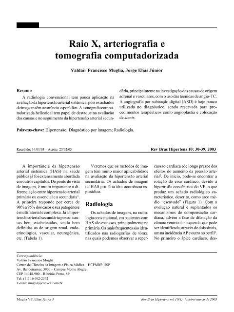 Tensão radiologia grau 1 muscular de