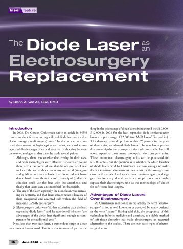 Diode Laser Replacement - Cosmetic Dentist North Vancouver