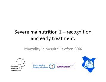 Severe malnutrition 1 – recognition and early treatment. - iDOC Africa