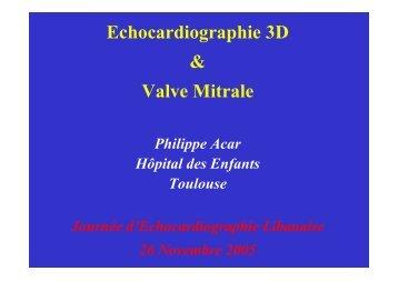 Echocardiographie 3D & Valve Mitrale - Cardiologie-francophone