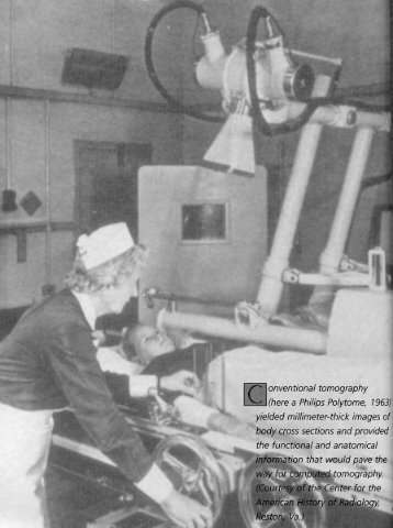 Conventional Tomography - American Roentgen Ray Society