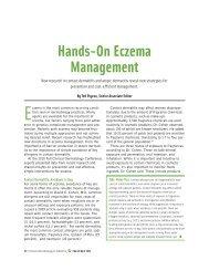 Hands-On Eczema Management