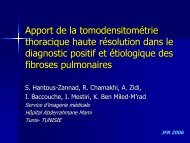 Fibroses secondaires