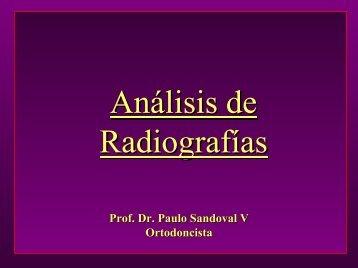 Análisis teleRx.pdf - Med.ufro.cl