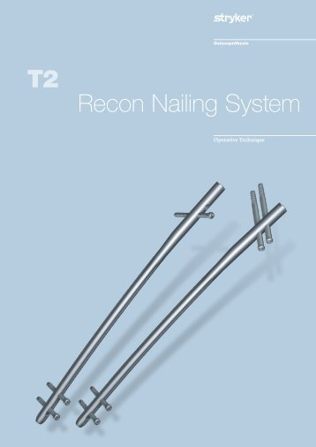 osteosynthesis stryker recon nail Guide to nail selection wwwosteosynthesisstrykercom literature number: b1000064 b5009 t2 kids femoral midshaft wall chartindd.