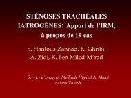STÉNOSES TRACHÉALES IATROGÈNES: Apport de l'IRM, à ...