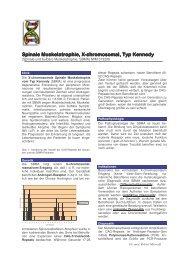 Spinale Muskelatrophie, X Spinale Muskelatrophie, X-chrom osom