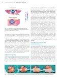 Die Behandlung von Keloiden und hypertrophen Narben durch ... - Seite 2
