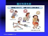 腹圧性尿失禁 - ODN