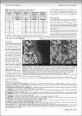 Cercetări privind sudarea şi încărcarea cu laser - Page 7