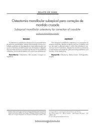 Osteotomia mandibular subapical para correção de ... - ABCCMF