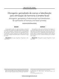 Microgenia: genioplastia de avanço e lateralização para ... - ABCCMF