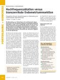 Hochfrequenzablation versus trans zervikale Endometriumresektion - Page 2