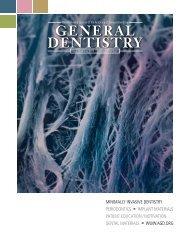 Minimally invasive biomimetic endodontics - Dental Lasers