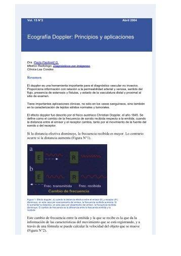 Ecografía Doppler: Principios y aplicaciones - Clínica Las Condes
